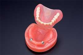 磁石+入れ歯