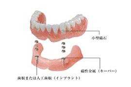 インプラント+入れ歯