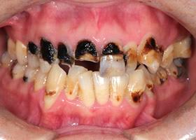 ボロボロの歯