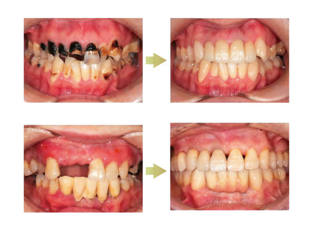 治療前と治療後の写真