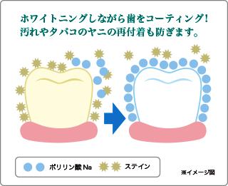 ホワイトニングしながら歯をコーディング